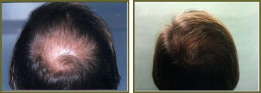 En savoir plus sur la microgreffe de cheveux